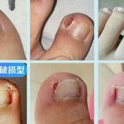 专治灰指甲甲沟炎